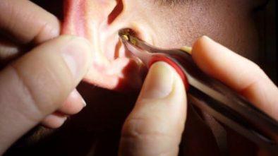 2 remedios naturales para eliminar la cera de los oídos
